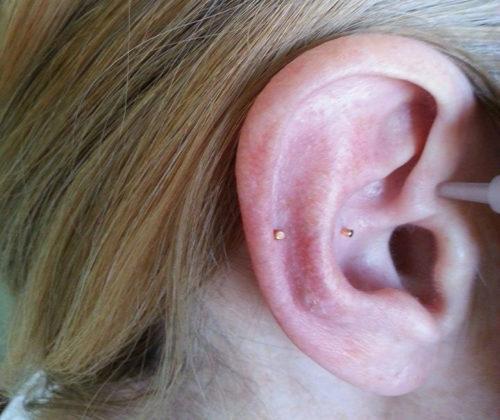 Ohrakupunktur bei chronischen Schmerzen